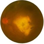 黄斑変性、黄斑上膜、黄斑円孔 他黄斑疾患の方