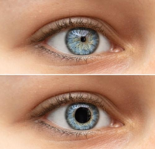 瞳孔を広げる必要がある方